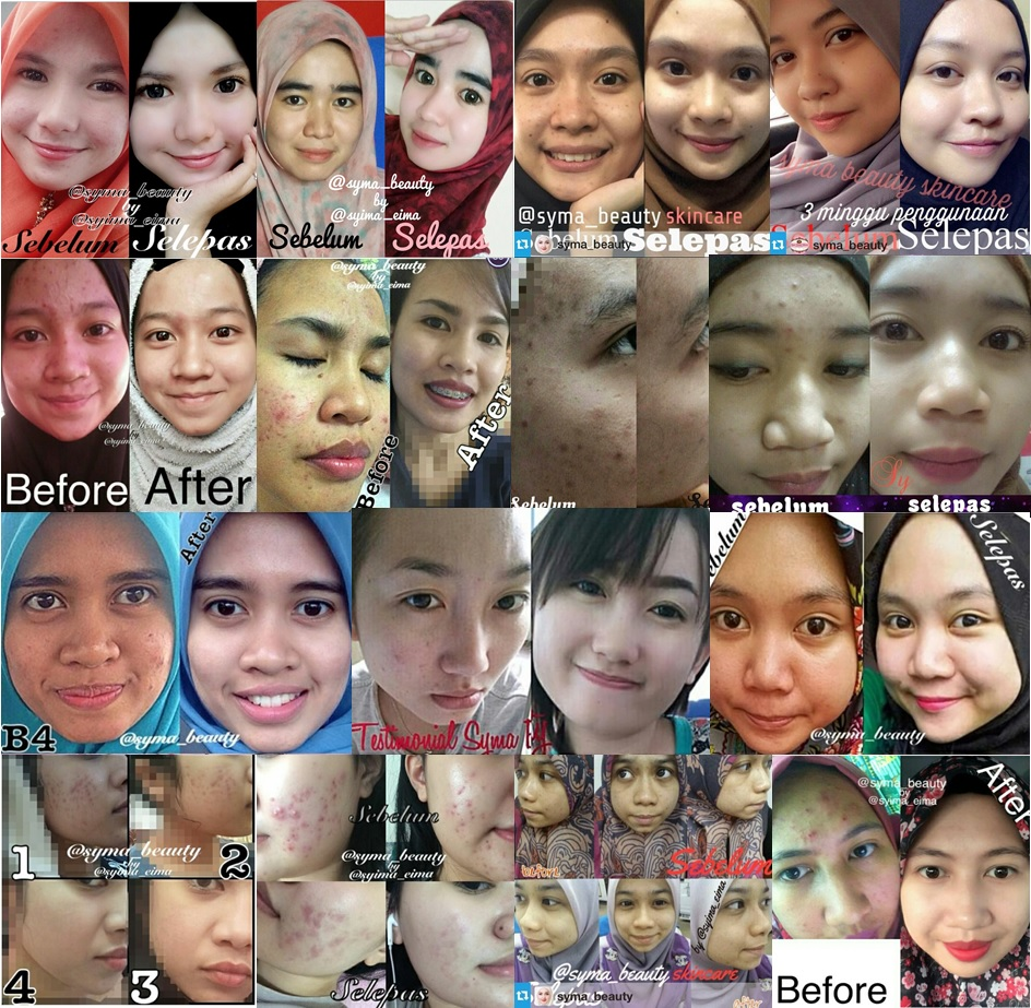 Testimoni Syma Beauty Skincare